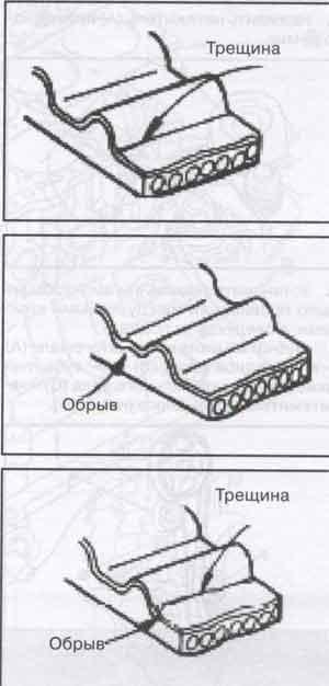 износ зубьев ремня Hyundai Getz